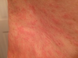inflammation, though it occurred right after the spraying, it probably was just exhaust fumes that caused this rash.